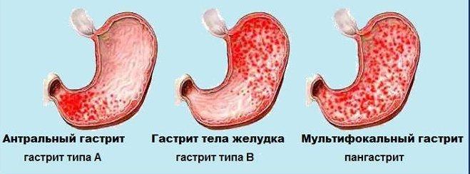 Гастрит Воспаление слизистой оболочки желудка