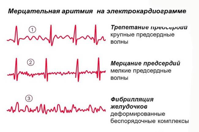 На кардиограмме