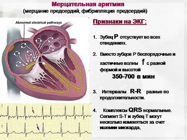 Какие анализы при повышенном холестерине