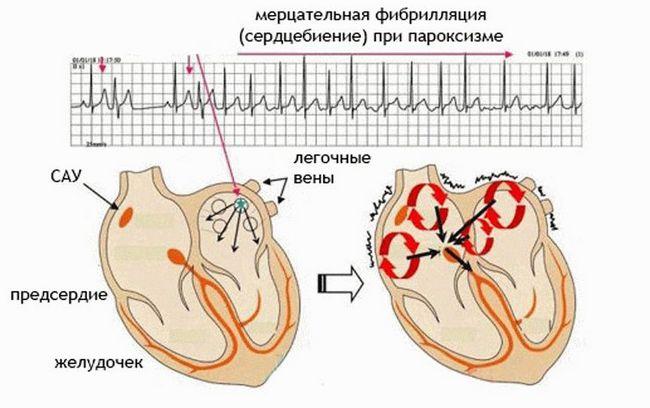 Феназепам при эпилепсии отзывы